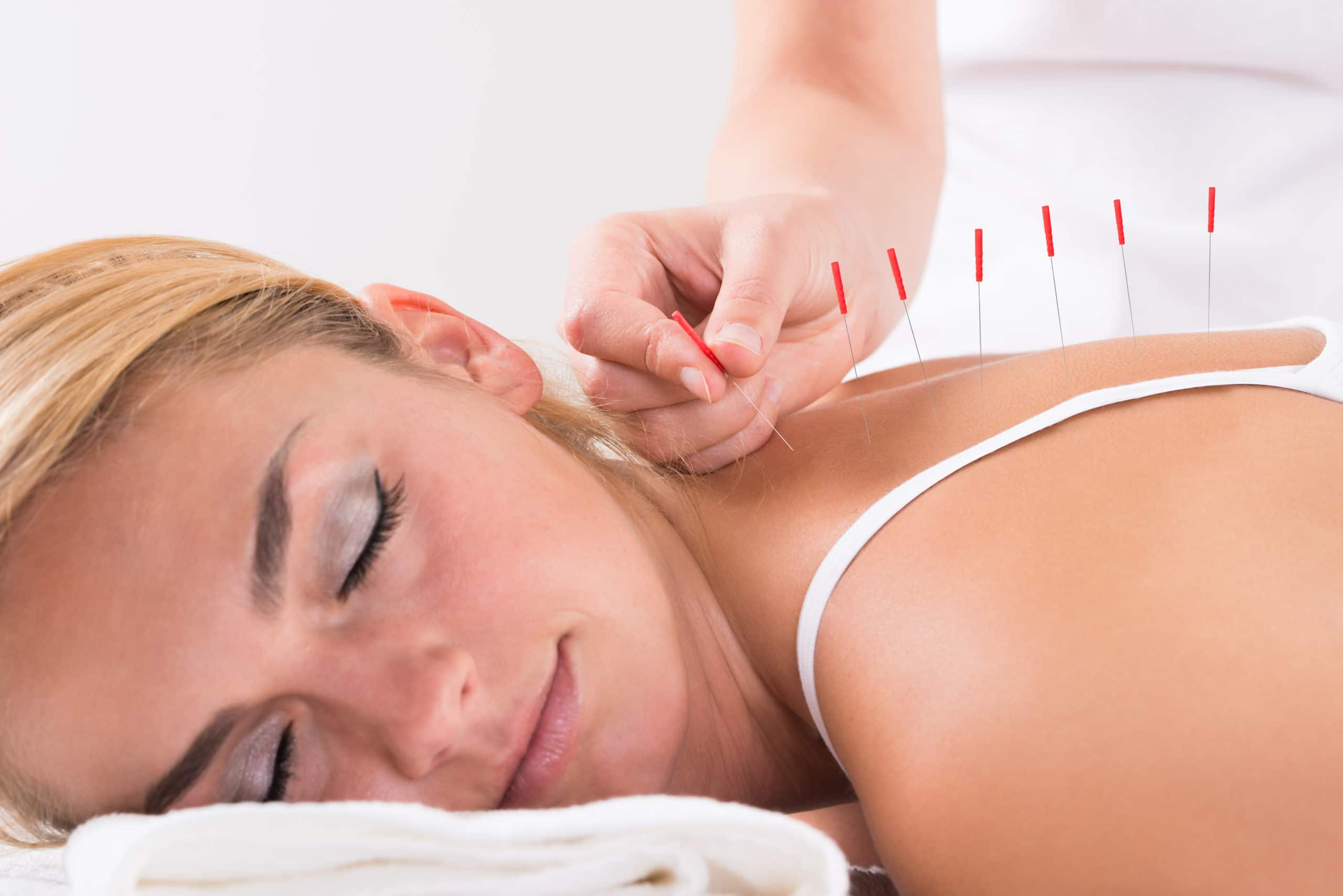 Acupuncture After an Auto Accident Injury